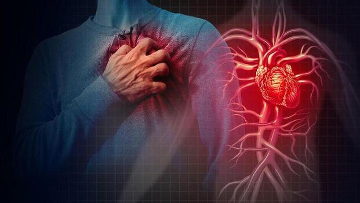 Ilustrasi sakit jantung akibat tersumbat pembuluh darah. (Istockphoto/wildpixel)