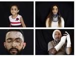 Melihat Potret Luka Korban Ledakan Lebanon