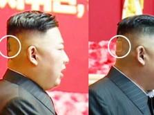 Heboh Perban di Bagian Belakang Kepala Kim Jong Un, Ada Apa?