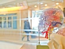 Risiko Perdarahan Otak yang Menimpa Pelawak Tukul Arwana
